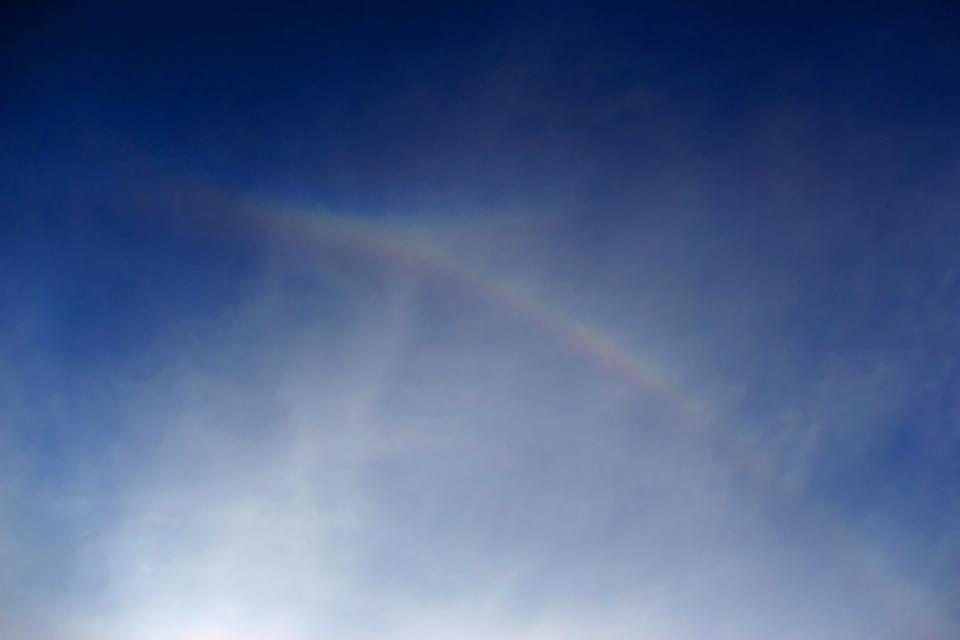 私を虹と呼ばないで ── 上部ラテラルアークの願い