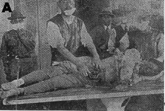 A「済南事件で殺害された日本人被害者」済南病院で1928年5月に撮影・『山東省動乱記念写真帖』昭和3年青島新報(株)→『ゼンボウ』昭和60年5月号