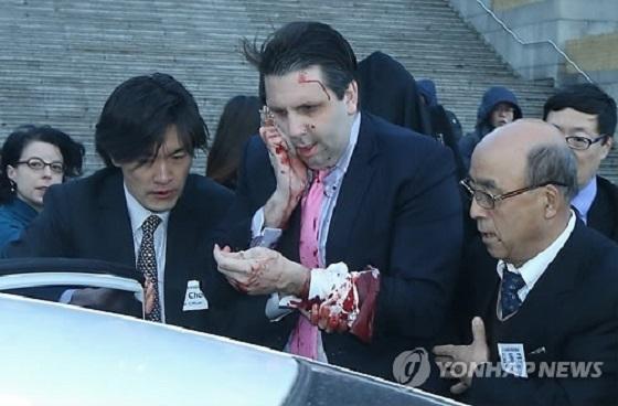 政治的目的の米大使公邸乱入は1989年以来30年ぶりでも、韓国では2015年に反米・反日・親北の活動家がマーク・リッパート駐韓米大使を刃物で襲撃して顔の右側長さ11センチ、深さ3センチ、約80針の縫合手術を行わせる