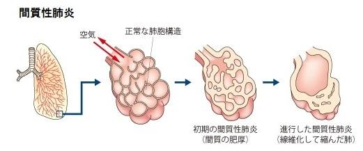 2020-4-23間質性肺炎