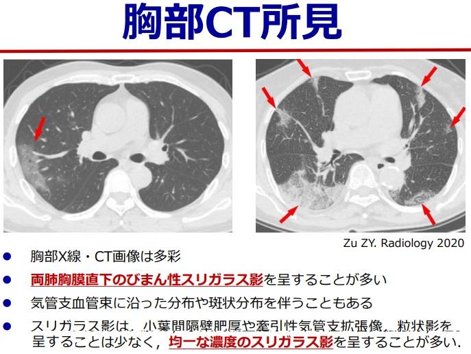 2020-4-23武漢肺炎胸部CT所見