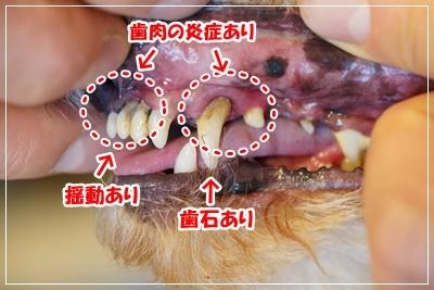 あんず歯1